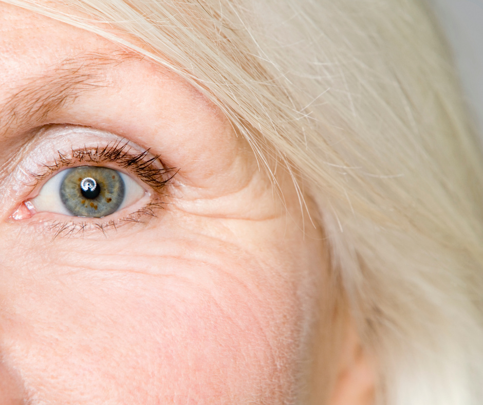 5 Of The Best Foods That Fight Wrinkles
