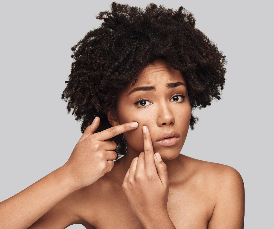 The Best Home Remedies for Blackheads and Whiteheads