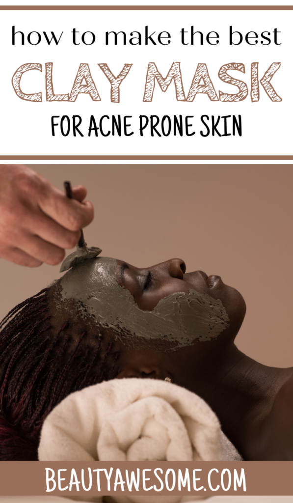The Best DIY Clay Mask For Acne